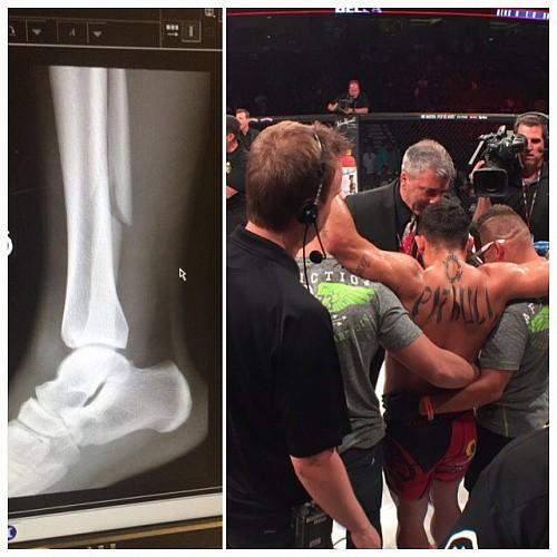 1c1fa5a534bc4db167caea1651552498 - Фрейре сломал ногу ещё в 1-м раунде после лоукика