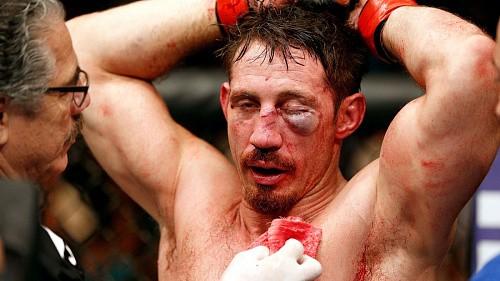 Тим Кеннеди не выступит на UFC 205