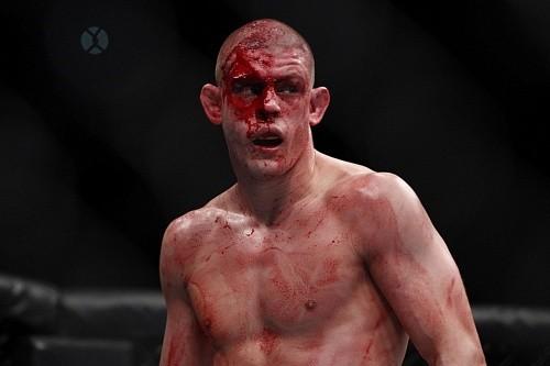 3faa2f25d85113968660beff5d36d280 - Джо Лоузон встретится с Таканори Гоми на UFC on FOX 16