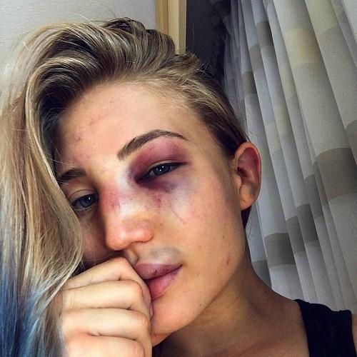 cd1d987de3e81e198e1c76b89129312e - Кадр дня: Лицо Яньковой после боя на Bellator 161