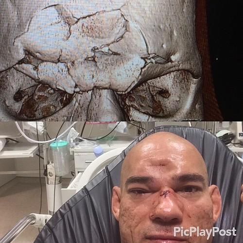 """Кадр дня: Ужасная травма """"Киборга"""" Сантоса, полученная в бою с Майклом Пейджем"""