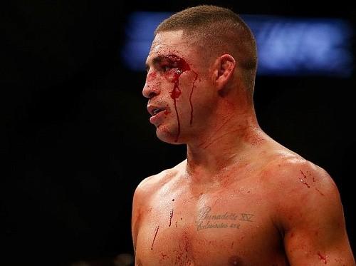 Диего Санчез: «UFC нужно вводить больше дивизионов»